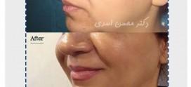 مراقبت های بعد از تزریق چربی صورت